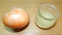 عصير البصل لزيادة كثافة الشعر وعلاج التساقط