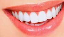 أهم 10 علاجات منزلية لتخلص من آلم الاسنان